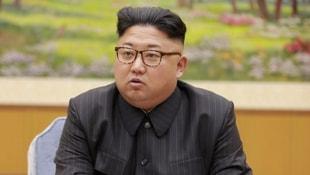 Kim Jong-un hastalığını daha fazla gizleyemedi!