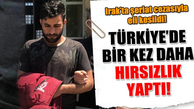 Şeriat cezasıyla elini kaybetti! Türkiyede yine aynı...